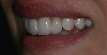Veneers Upper Centrals and Laterals