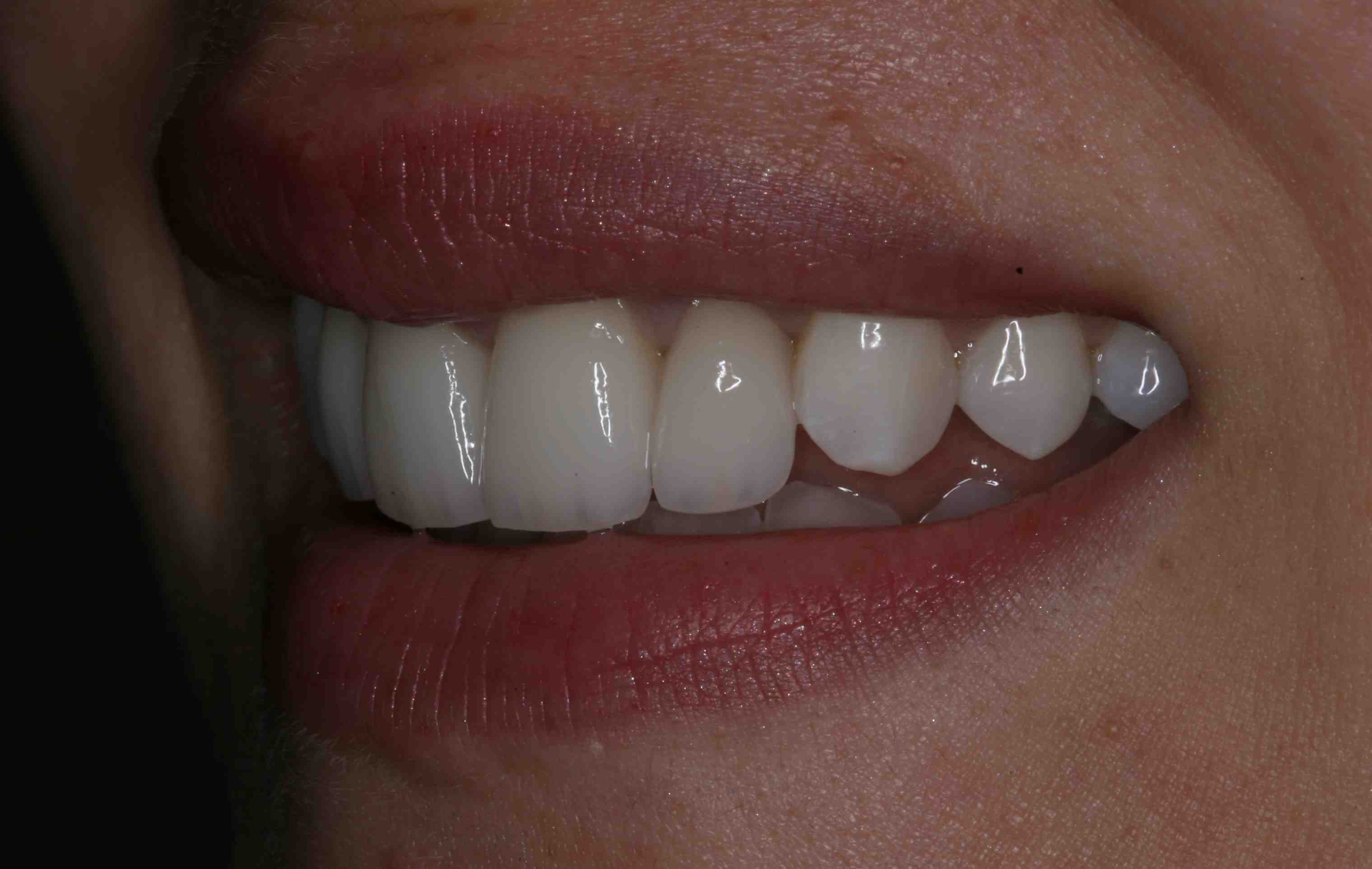 Using In Office Bleaching as an Adjunct To Restorative Care