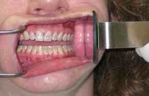 Buccal mirror in place for a buccal retracted dental photograph