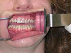 Warming Mirrors for Dental Photography