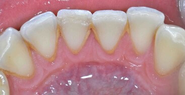 Fractured Lower Incisor