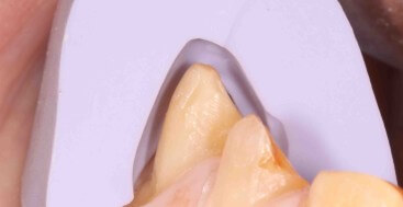 Full Contour Lateral Silicone Reduction Matrix over canine preparation
