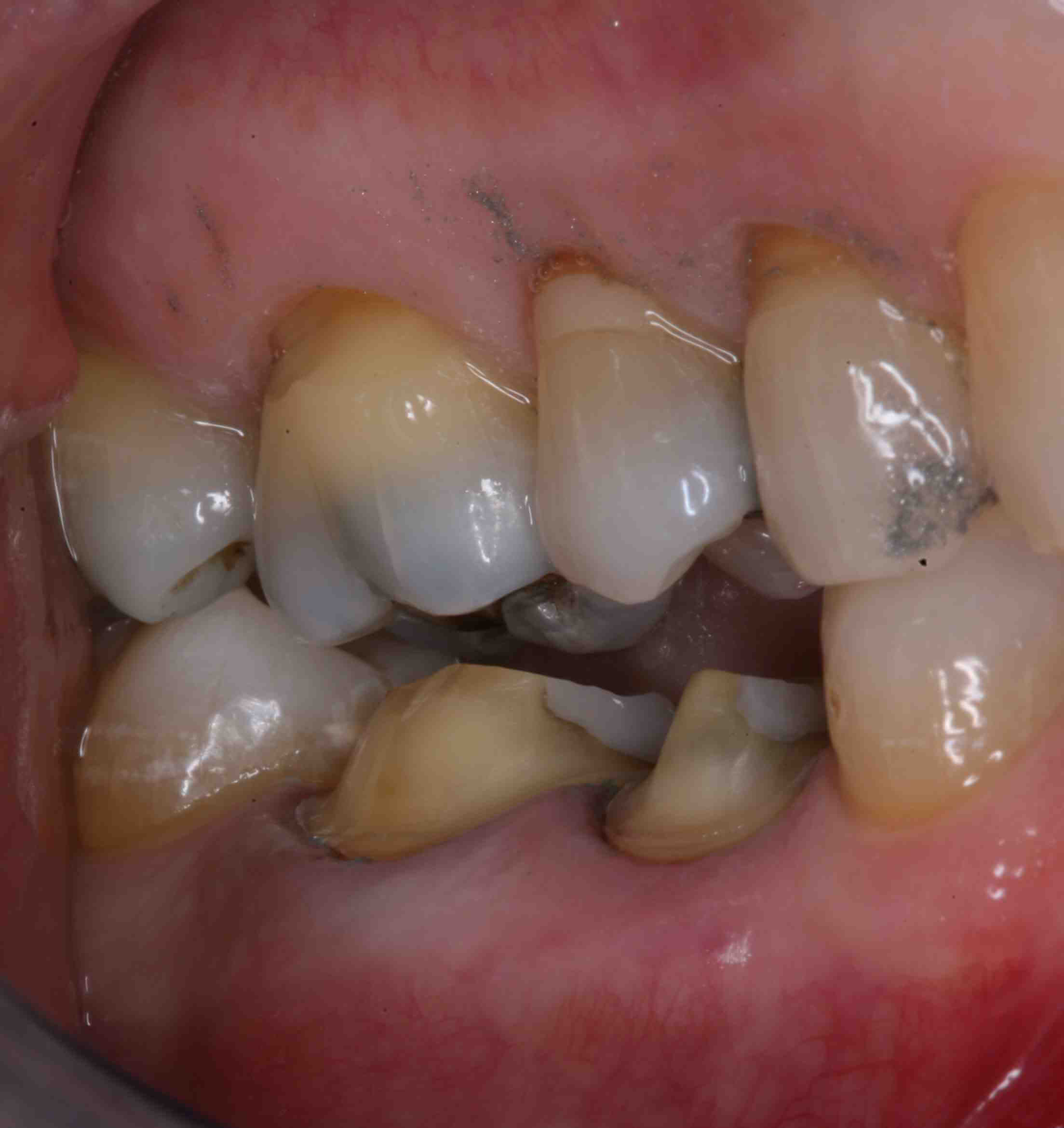 Occlusal Reduction: How Much is Enough