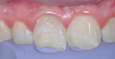 Class Four Tooth Prep with Silicone Matrix