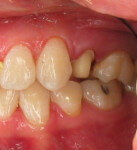Occlusal reduction on upper bicuspid