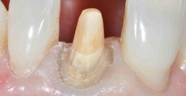 Central incisor prep with discolored band in the cervical third