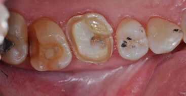 DOBL Onlay and MODBL Onlay on upper molars