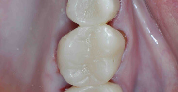 Provisional crowns on upper right quadrant