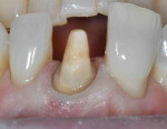 Central incisor after discolored band is repaired with Venus Diamond OMC