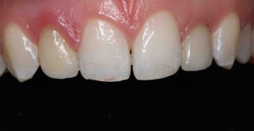 dental photograph to communicate surface morphology