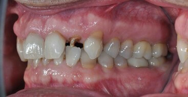 Fractured Lateral Incisor in a deep bite patient