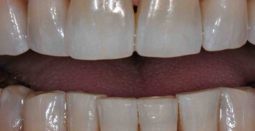 Tetracycline Stain on Teeth