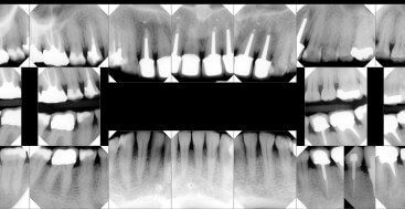 Full Mouth Series of Radiographs