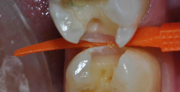 Caries Detection Dye in the base of Prep
