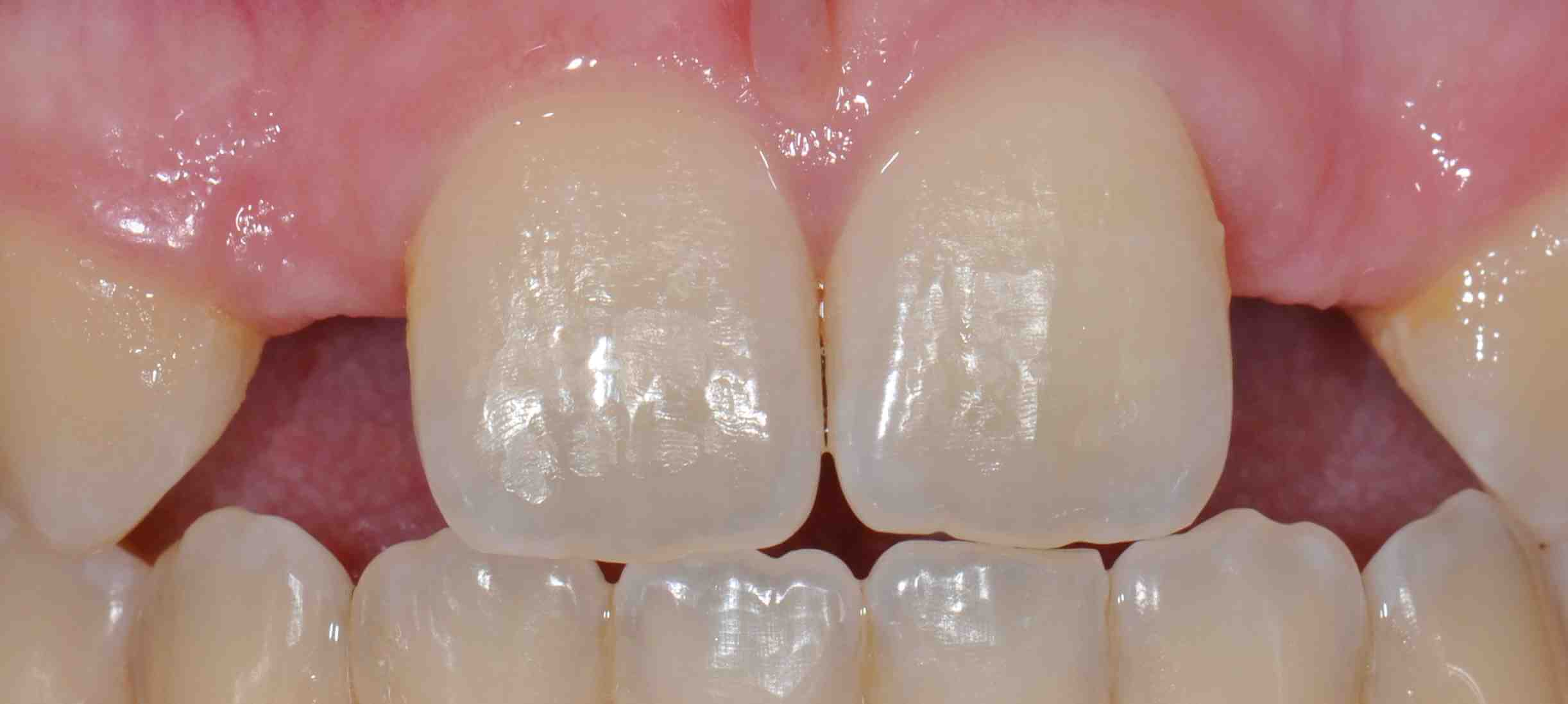 Resin Bonded Bridge for Lateral Incisor Replacement