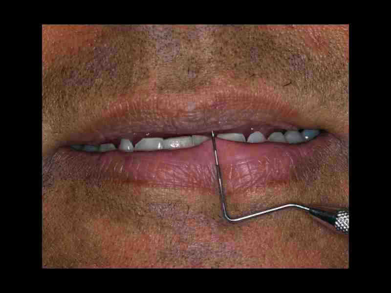 Treatment Planning Begins With Incisal Edge Position