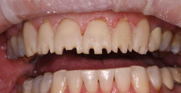 Anterior Teeth with Incisal Depth Cuts into Mock Up