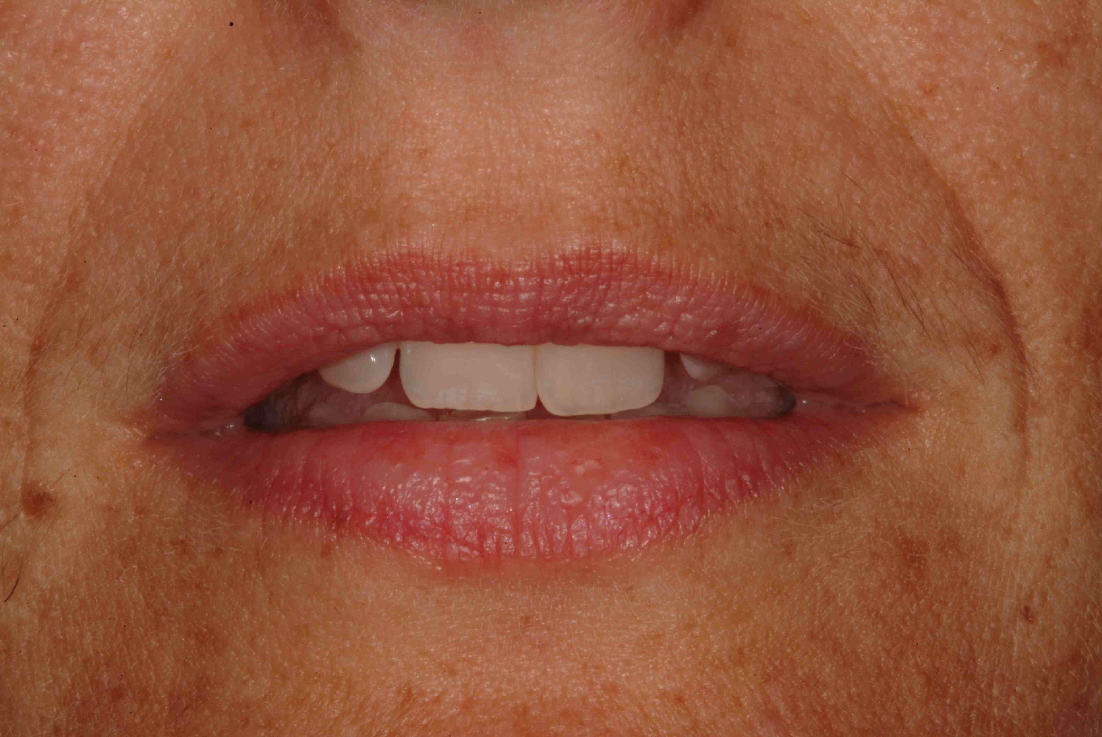 Is The Diagnosis a Hypermobile Lip?