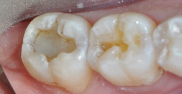 Occlusal Preparations with Opaque composite