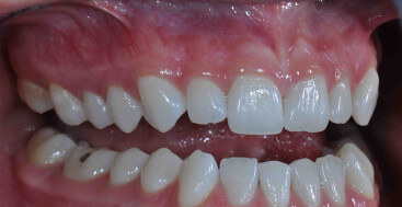 Buccal Retracted Teeth Apart Dental Photograph