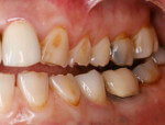 Tooth Erosion on the left side in a right handed individual