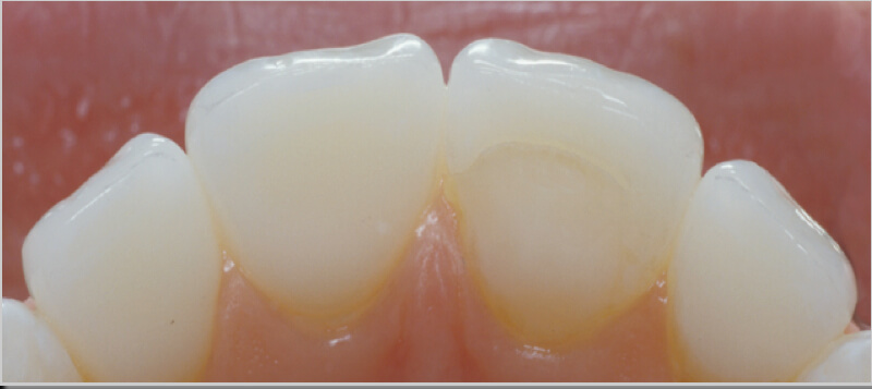 Matching a Single Central: Facial Embrasure Form