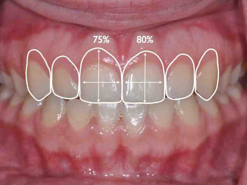 Gingival Esthetics: Planning Where The Pink Should Be