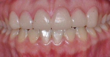 Composite trial smile