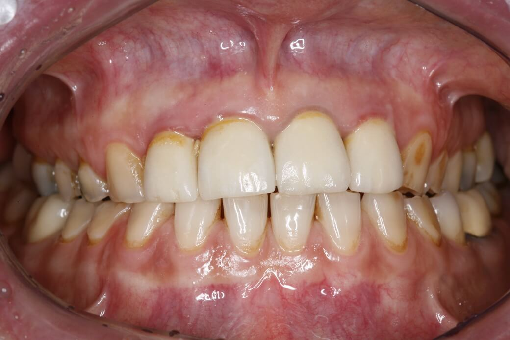 Using Shell Provisionals To Change Vertical Dimension