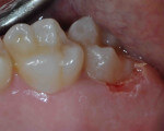 Upper Second Molar Laser Gingivectomy & Composite