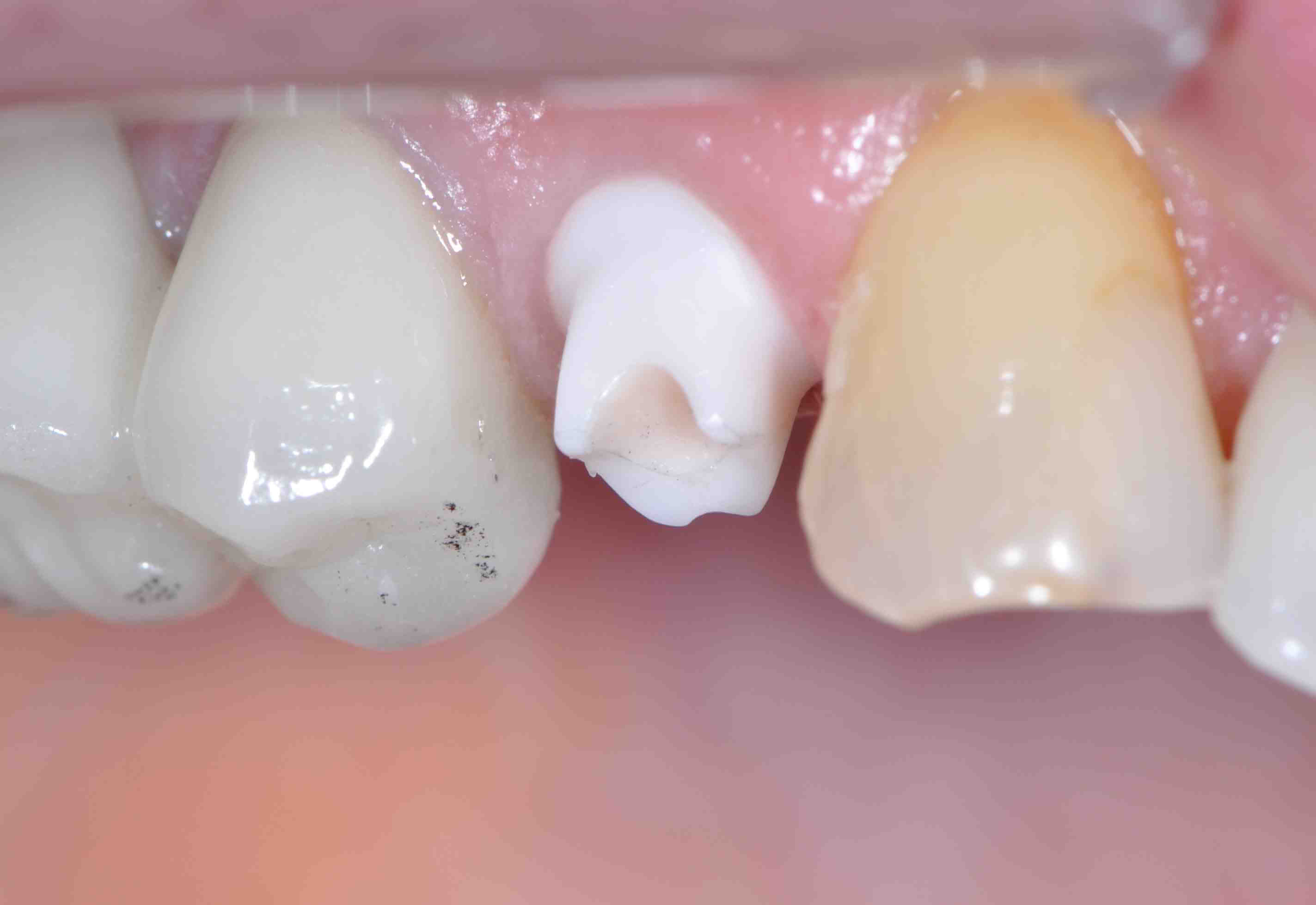 Screw Retained Versus Cement Retained Implant Crowns
