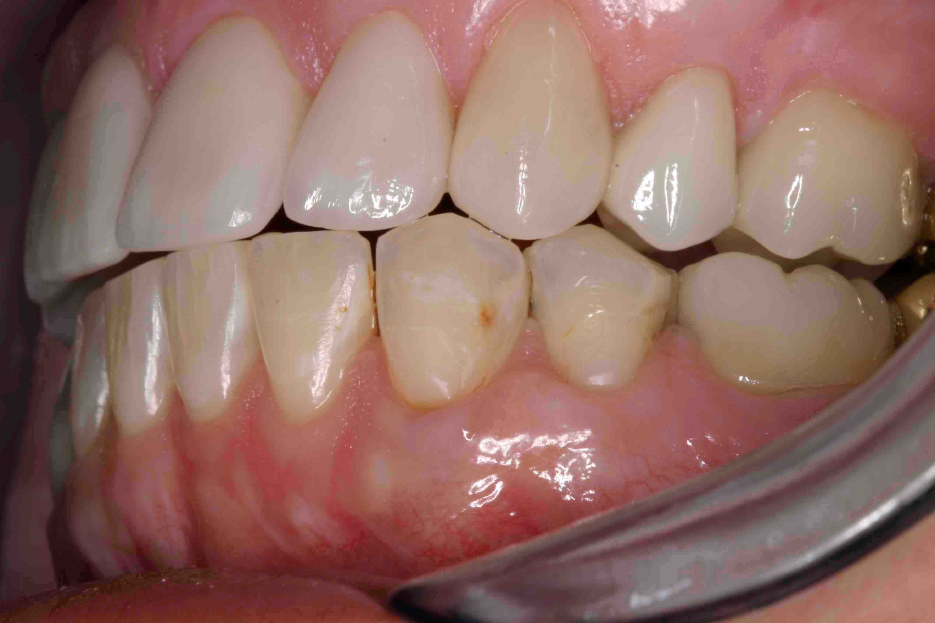 Incisal Embrasure Web