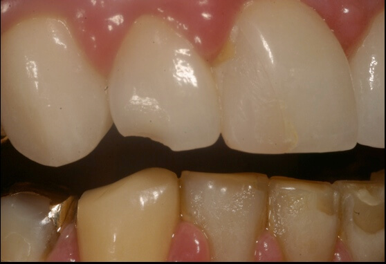 Lateral Incisor Fracture