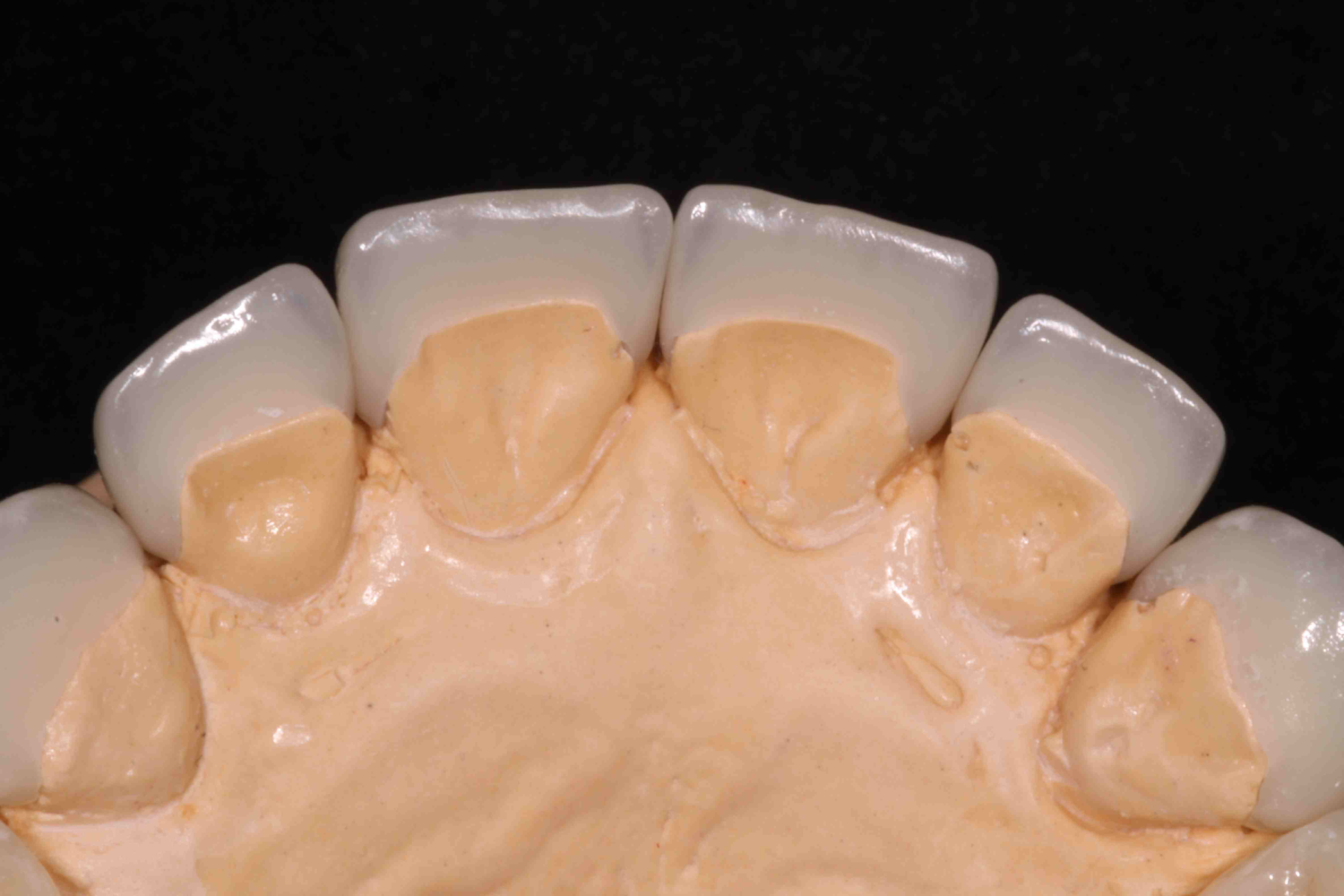 Curing Dentin Adhesive When Seating Indirect Restorations