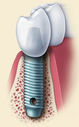 Dental Implant Failure Rate