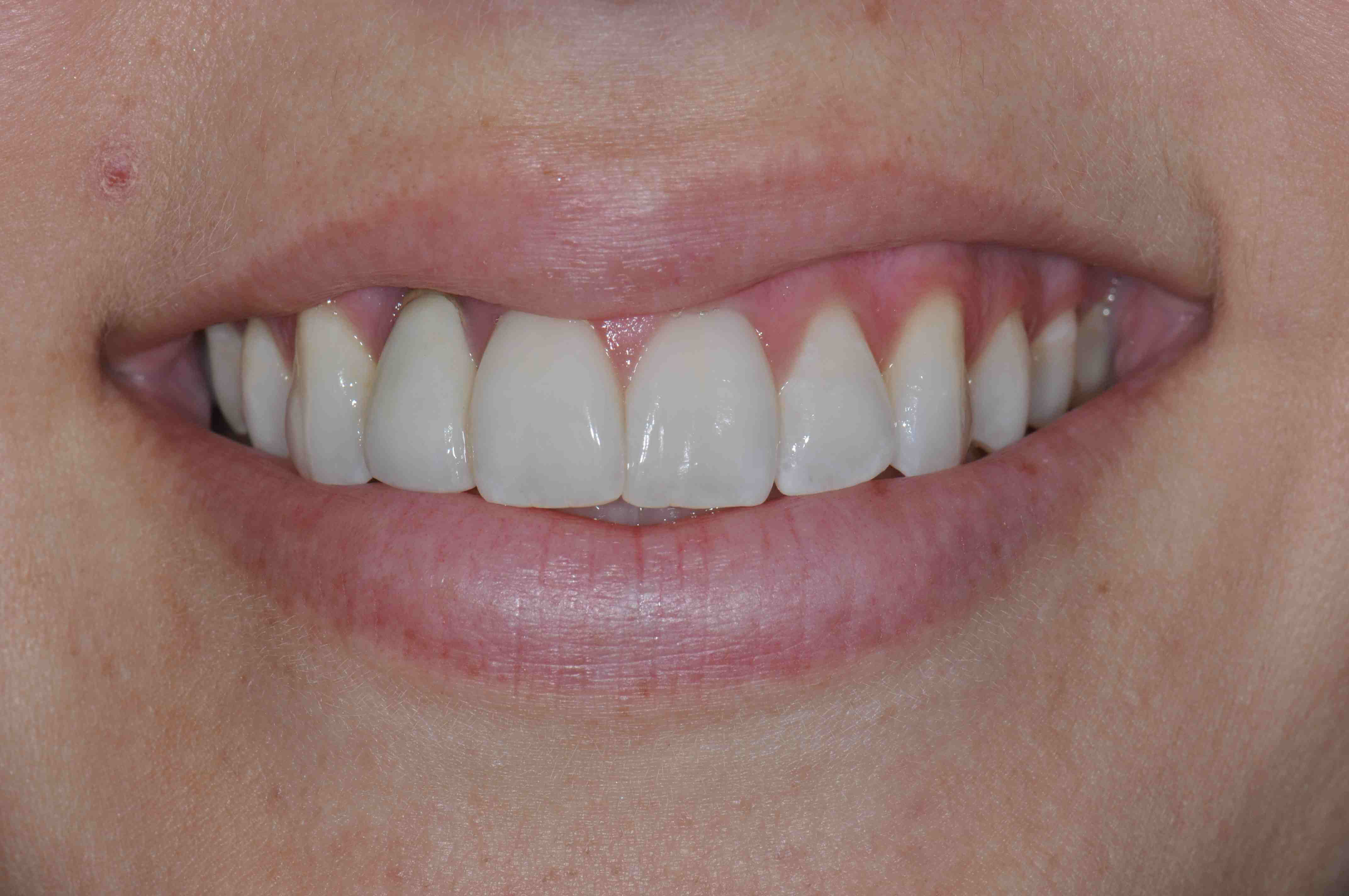 Esthetic Implant Failure: What Would You Do?