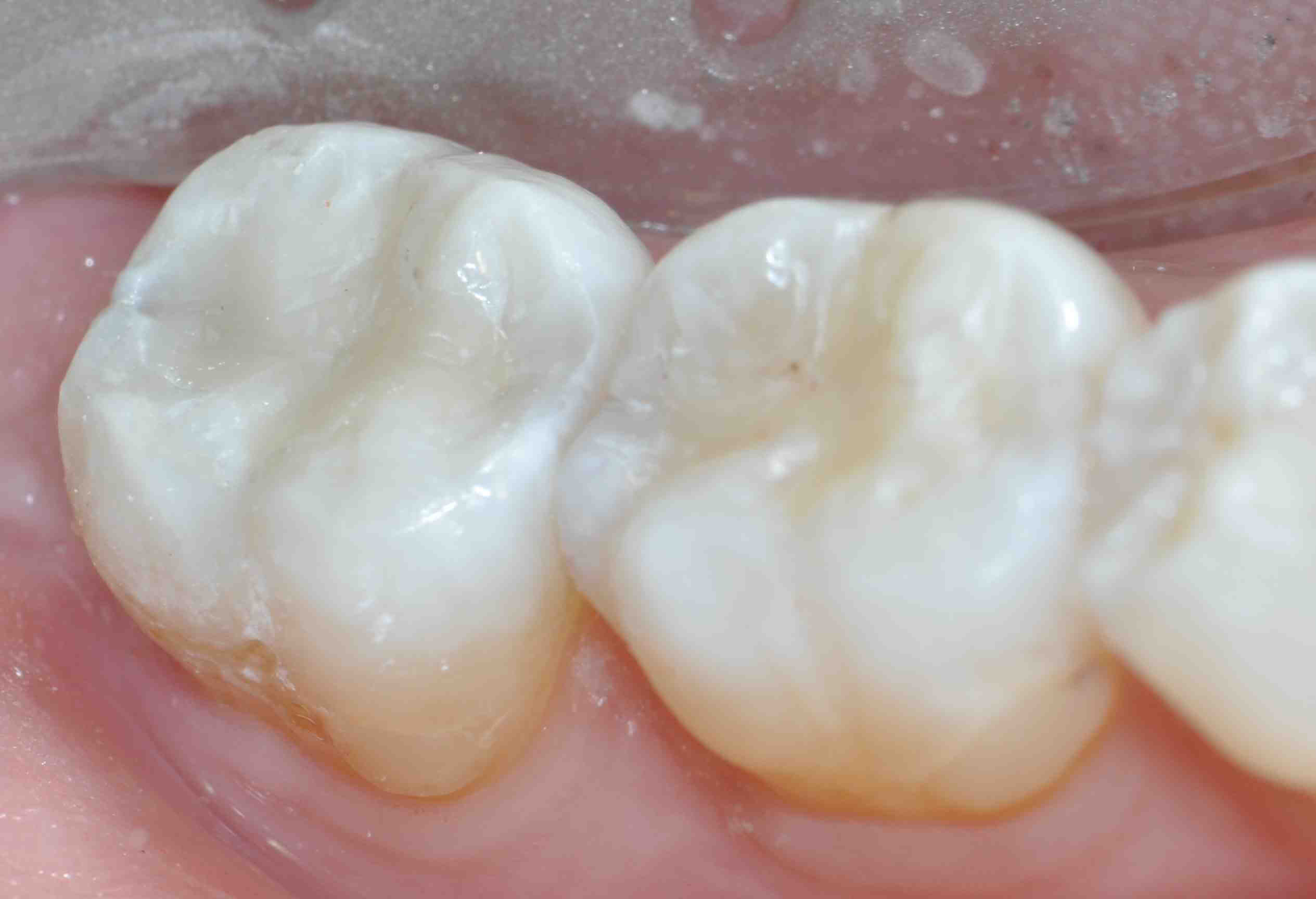 Posterior Composite Prep Bevels: Yes or No?