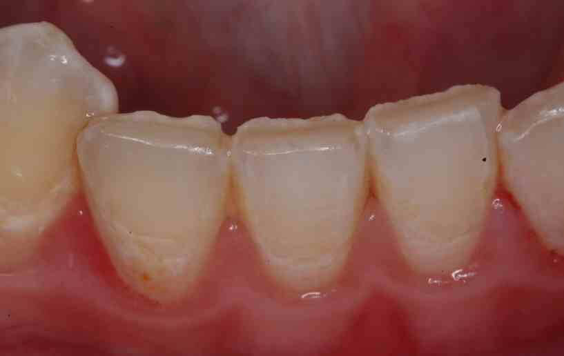 Is Tooth Wear Normal?