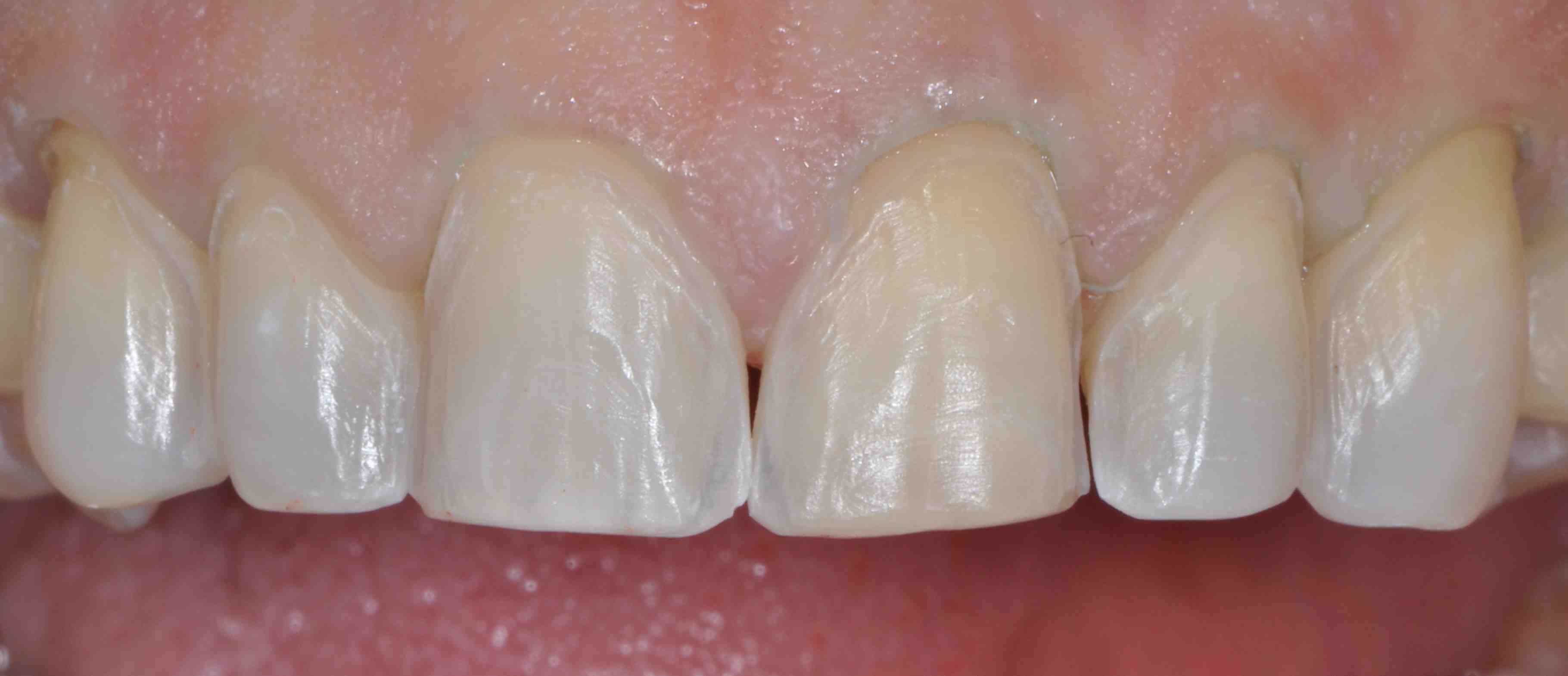 Supragingival Margins: When Do They Work?