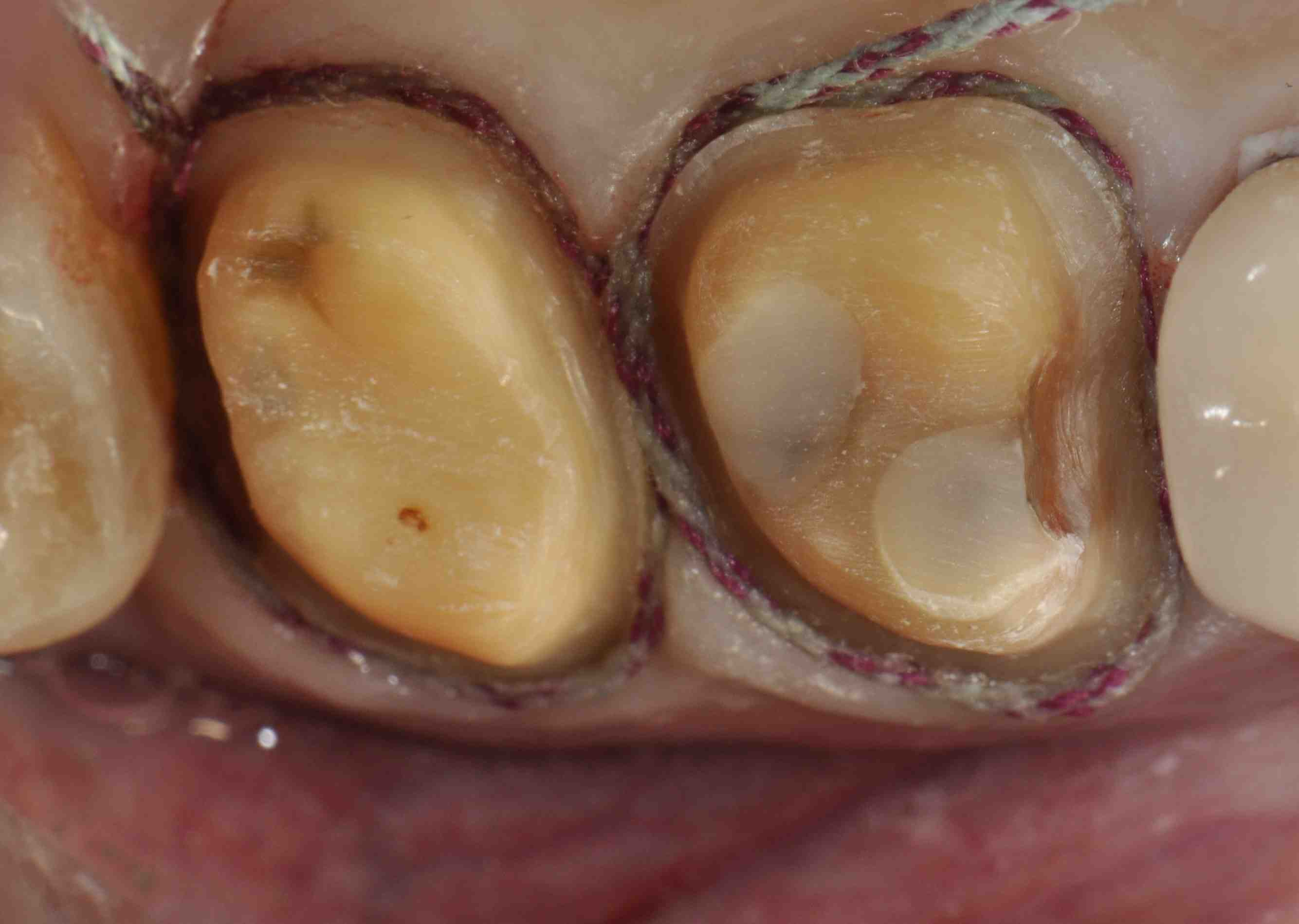 Cracked Teeth: Containment or Cusp Reinforcement?