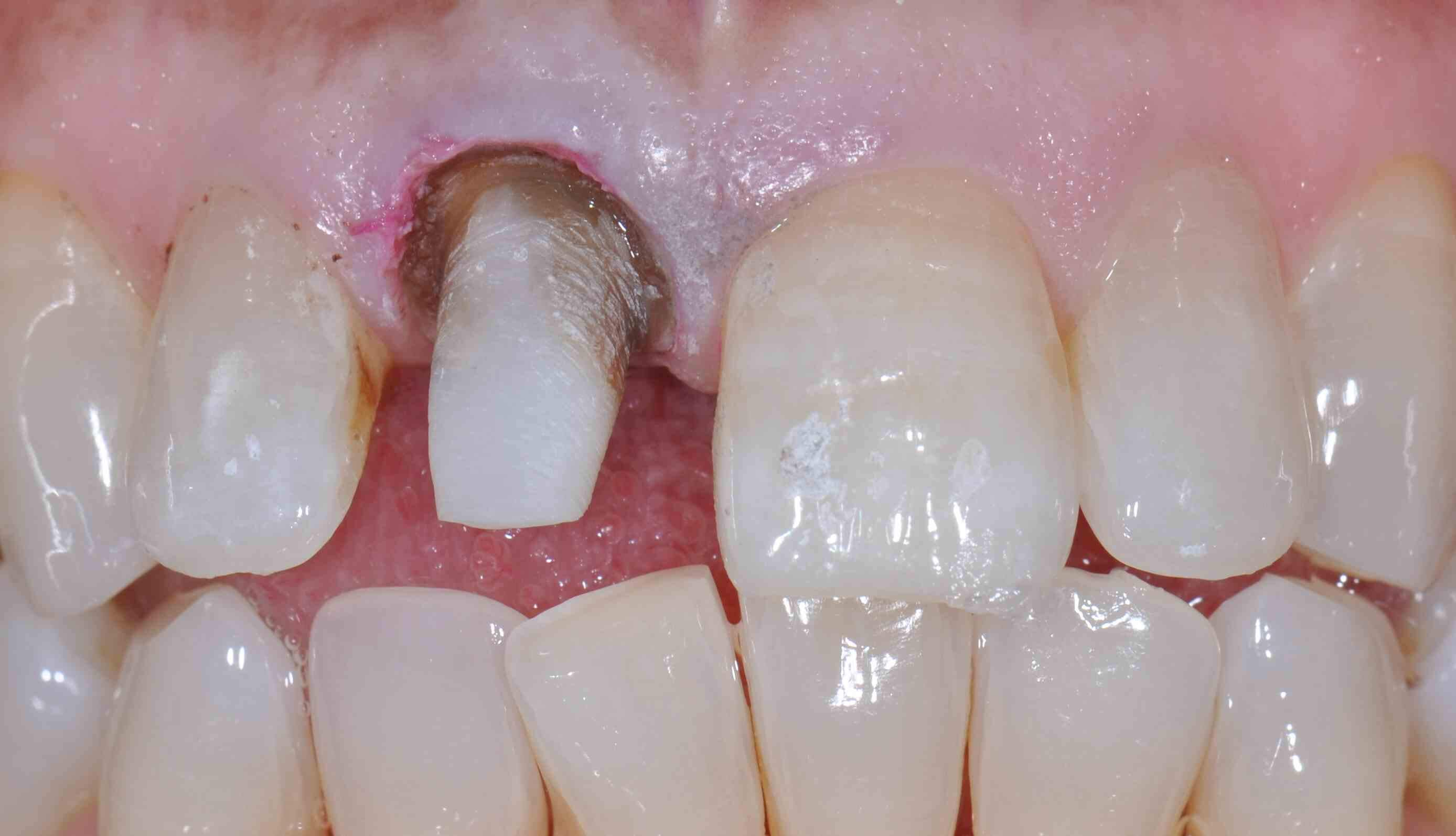 Single Tooth Bleaching: The Perfect Tray