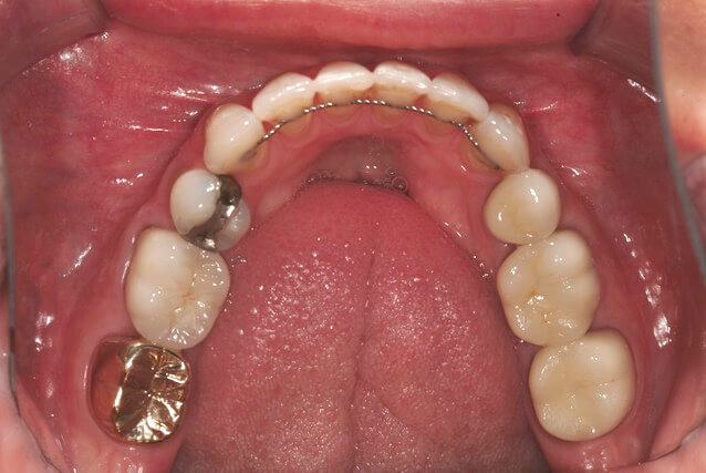 Orthodontic Retention: How Long is Long Enough?