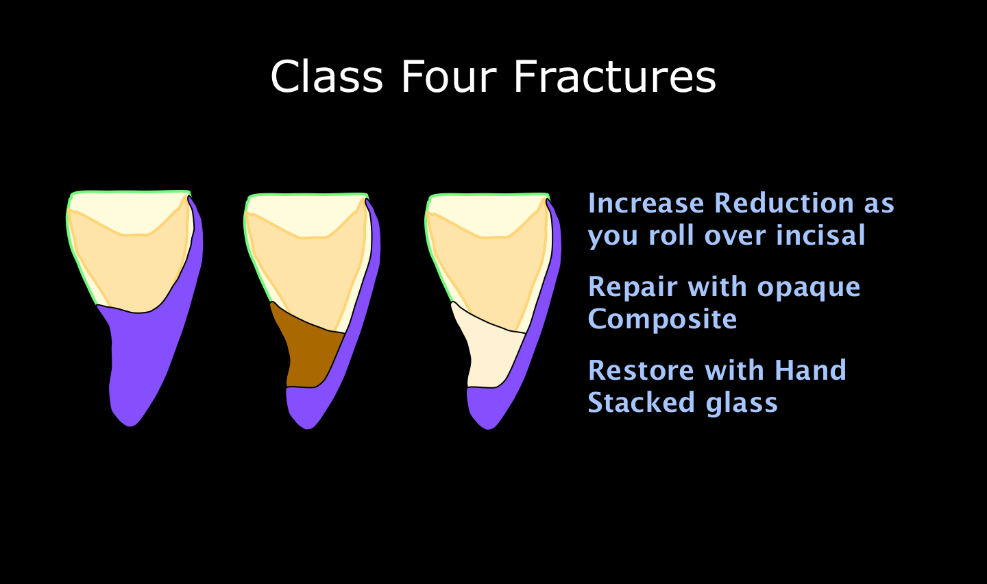Video: Porcelain Veneer Over Class Four Fracture