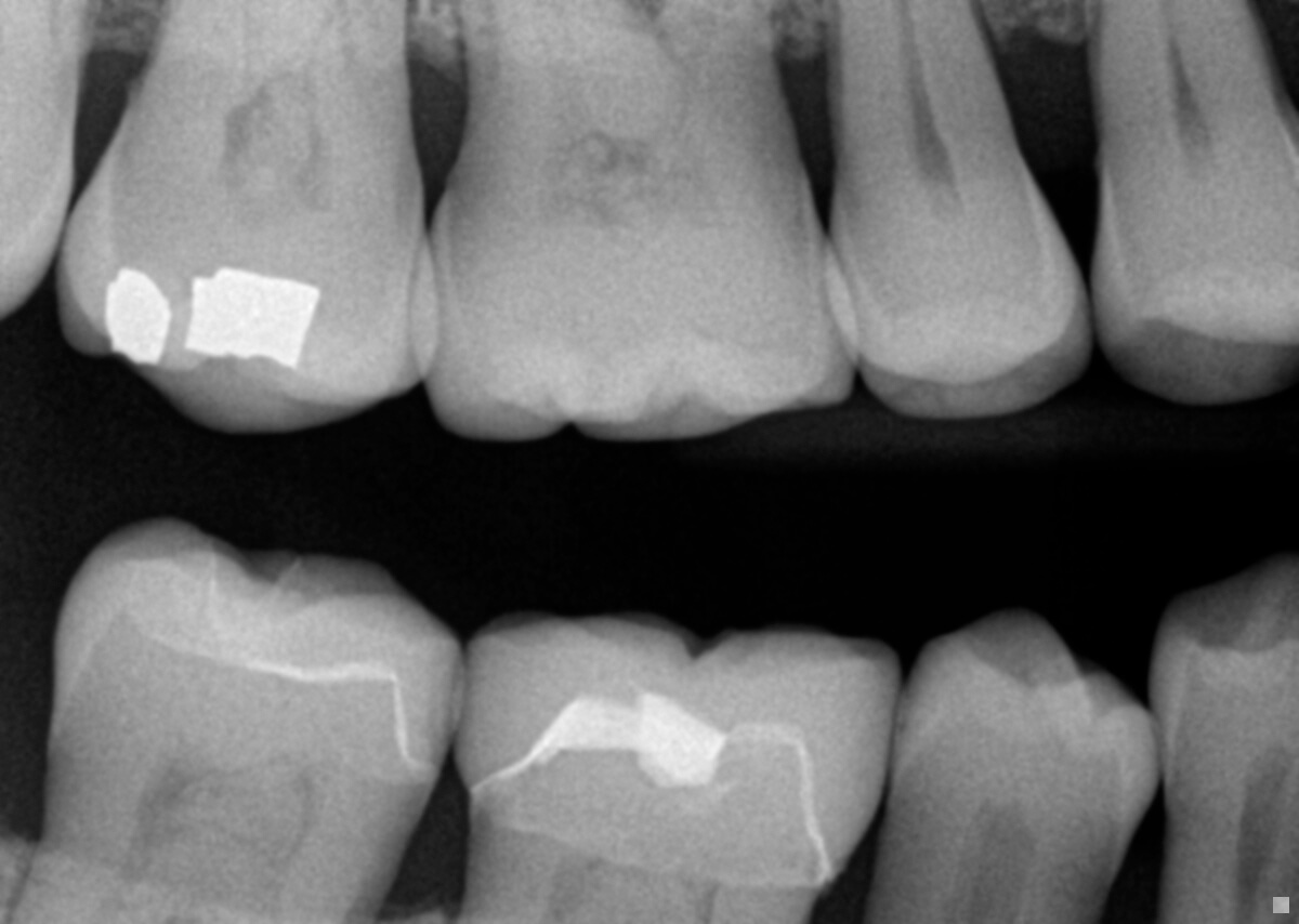 Radiographs: Are They Diagnosed or Simply Taken?