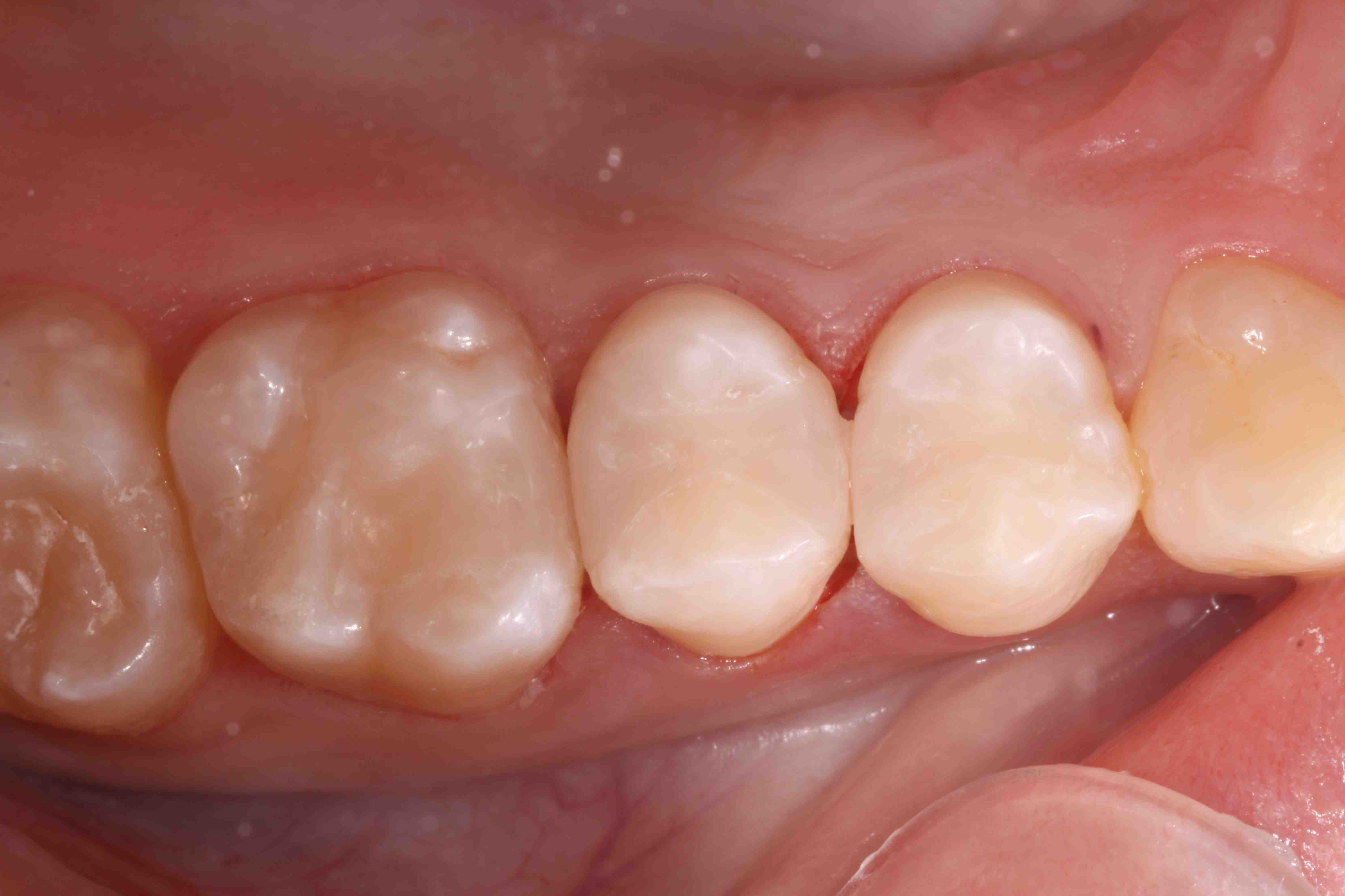 Composite Occlusal Contacts