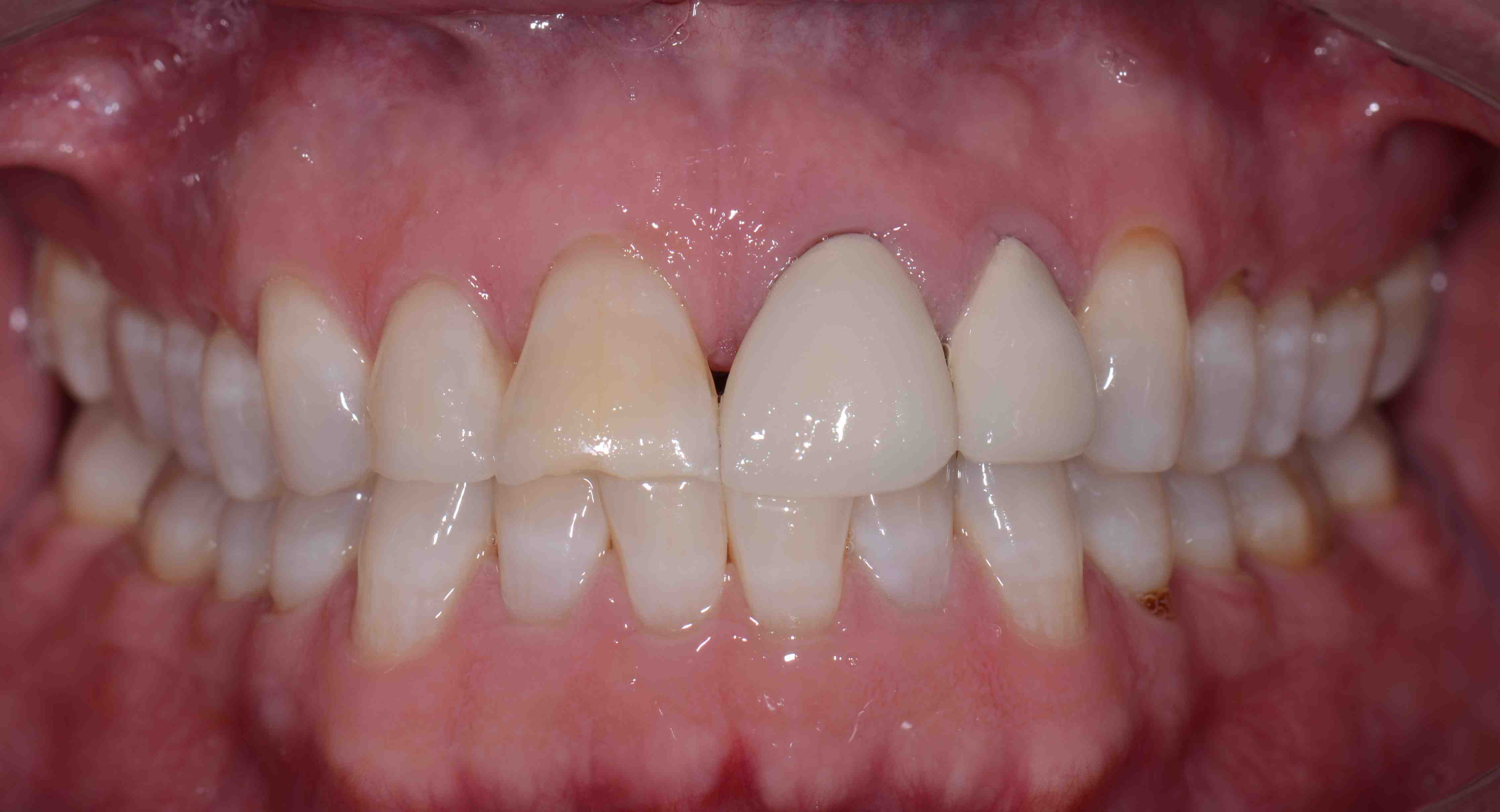 I Don't Want My Teeth To Look Like Crowns