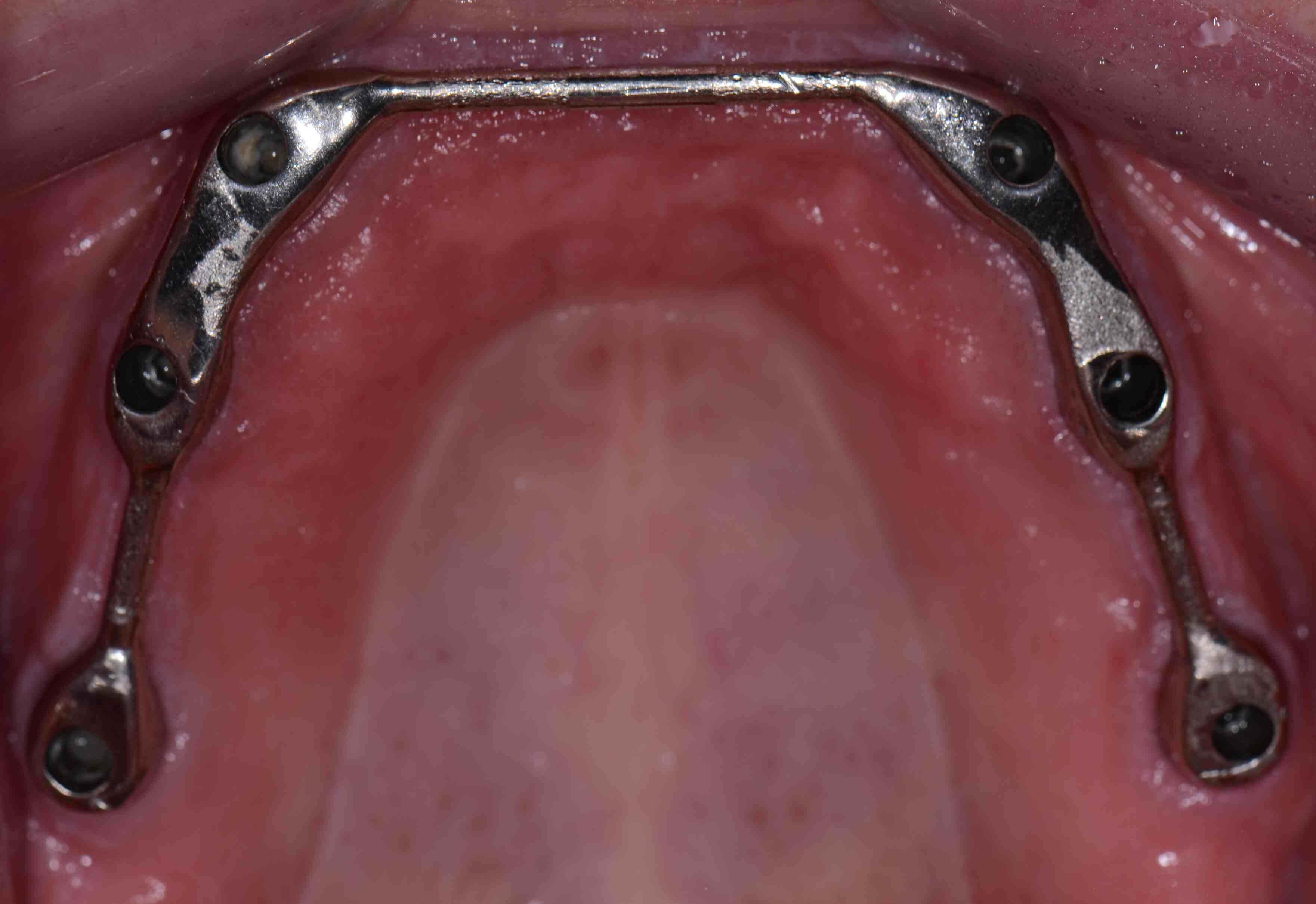 Implant Retained Hybrid Space Requirements
