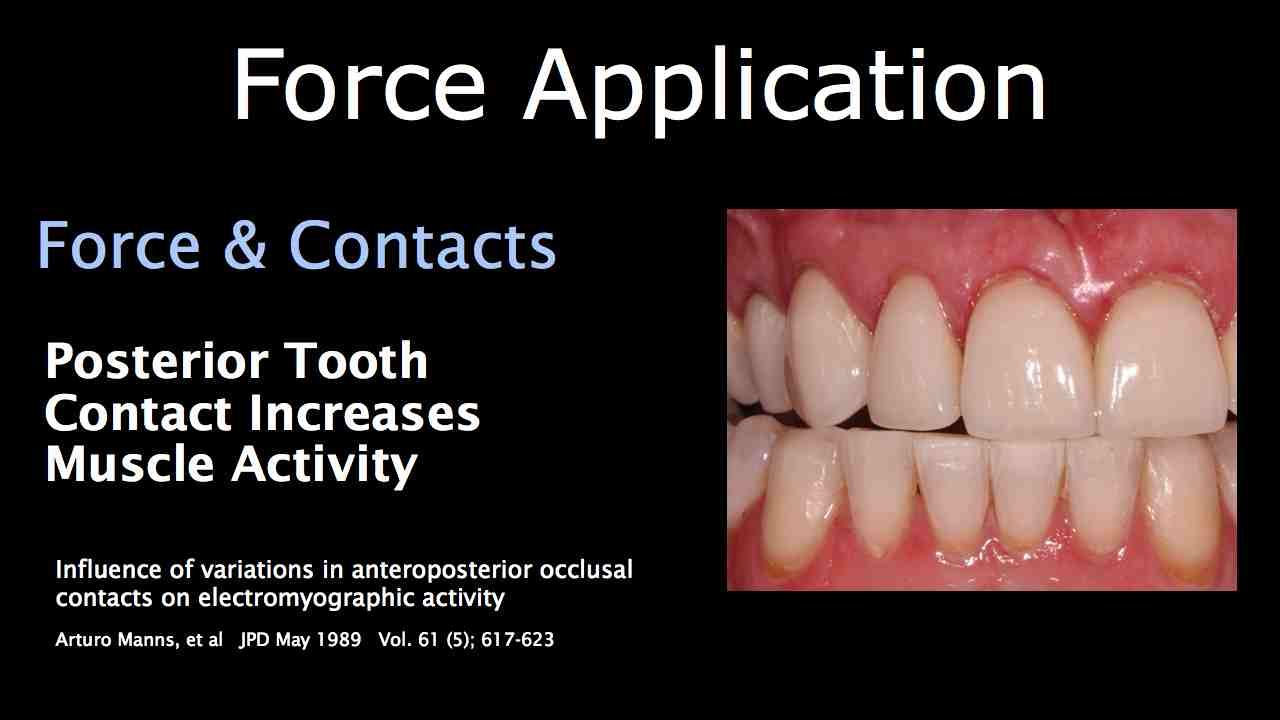 Joint load & Occlusal Contacts: Part Two
