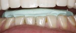 Incisal edge Matrix Lower web
