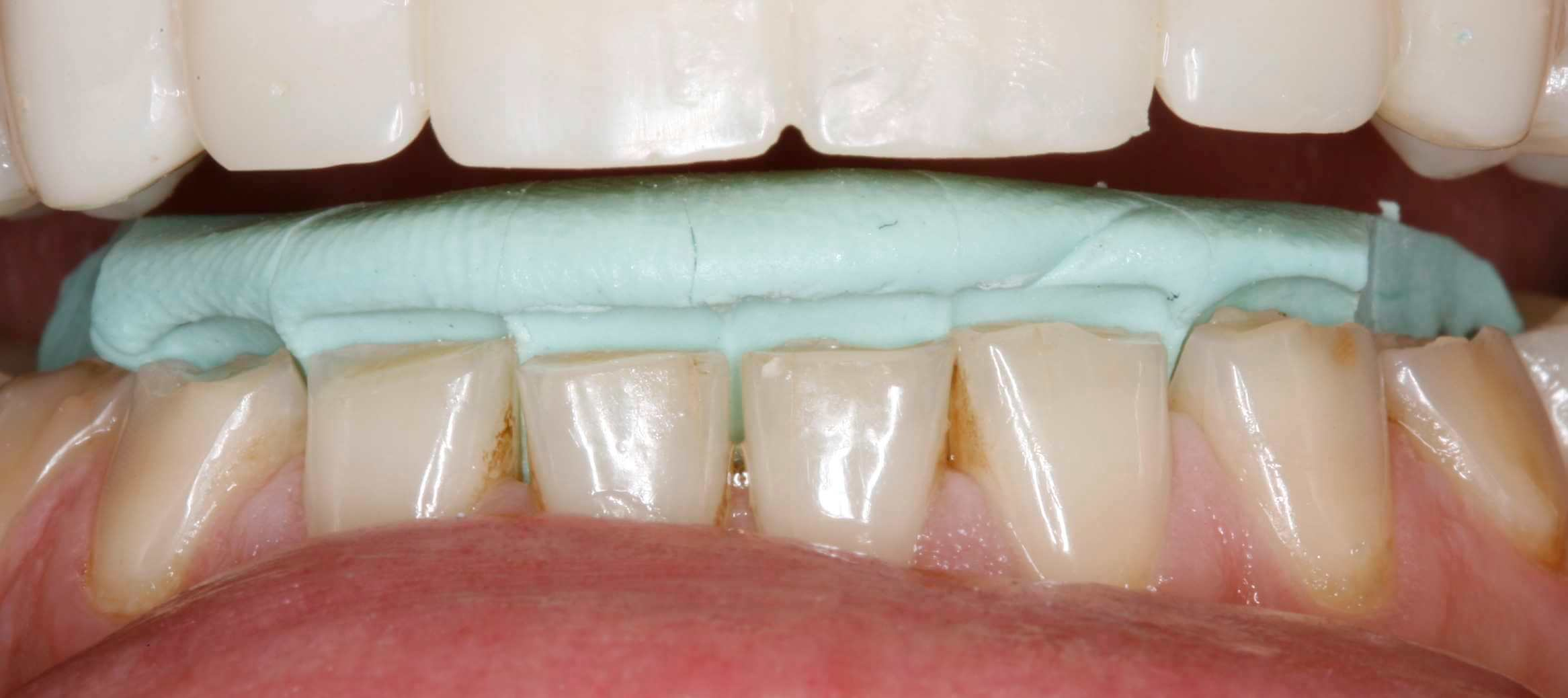 Direct Composite for Repairing Worn Incisal Edges